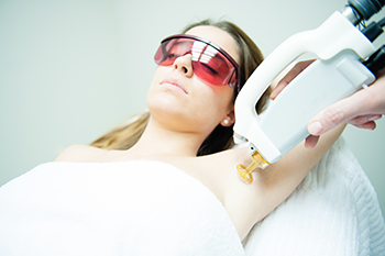 Laser Hair Removal at the Laser Hair Removal Center of the Treasure Coast